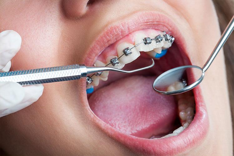Clínica Atenta Odontologia Sistêmica - Ortodontia
