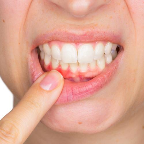 Clínica Atenta Odontologia Sistêmica - Periodontia