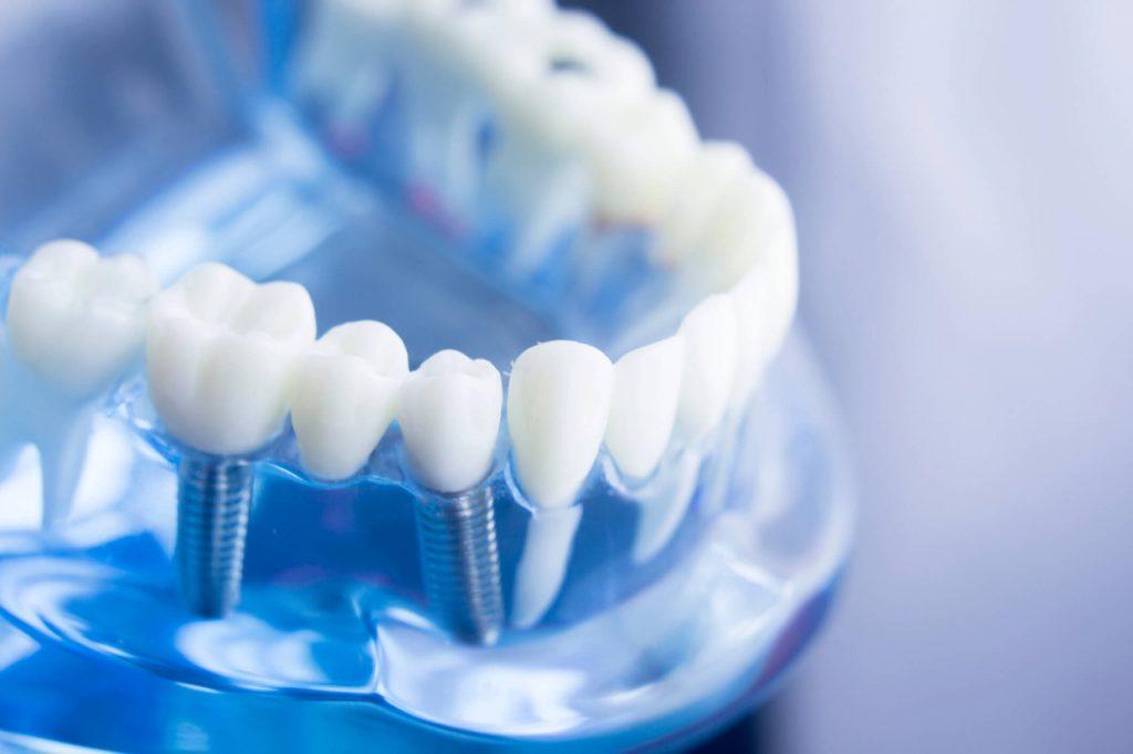 Clínica Atenta Odontologia Sistêmica - implantodontia
